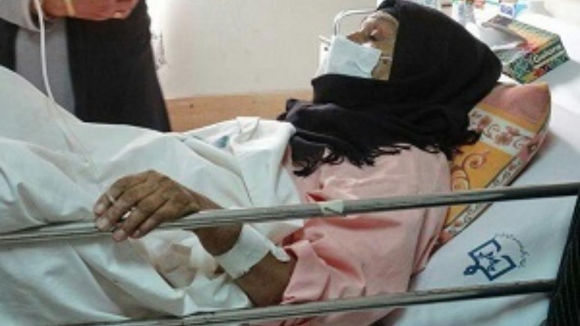 تداوم طوفان شن درسیستان 164 نفررا راهی بیمارستان کرد